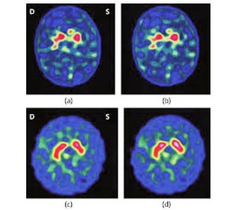 Монитор, влияющий на мозг детей
